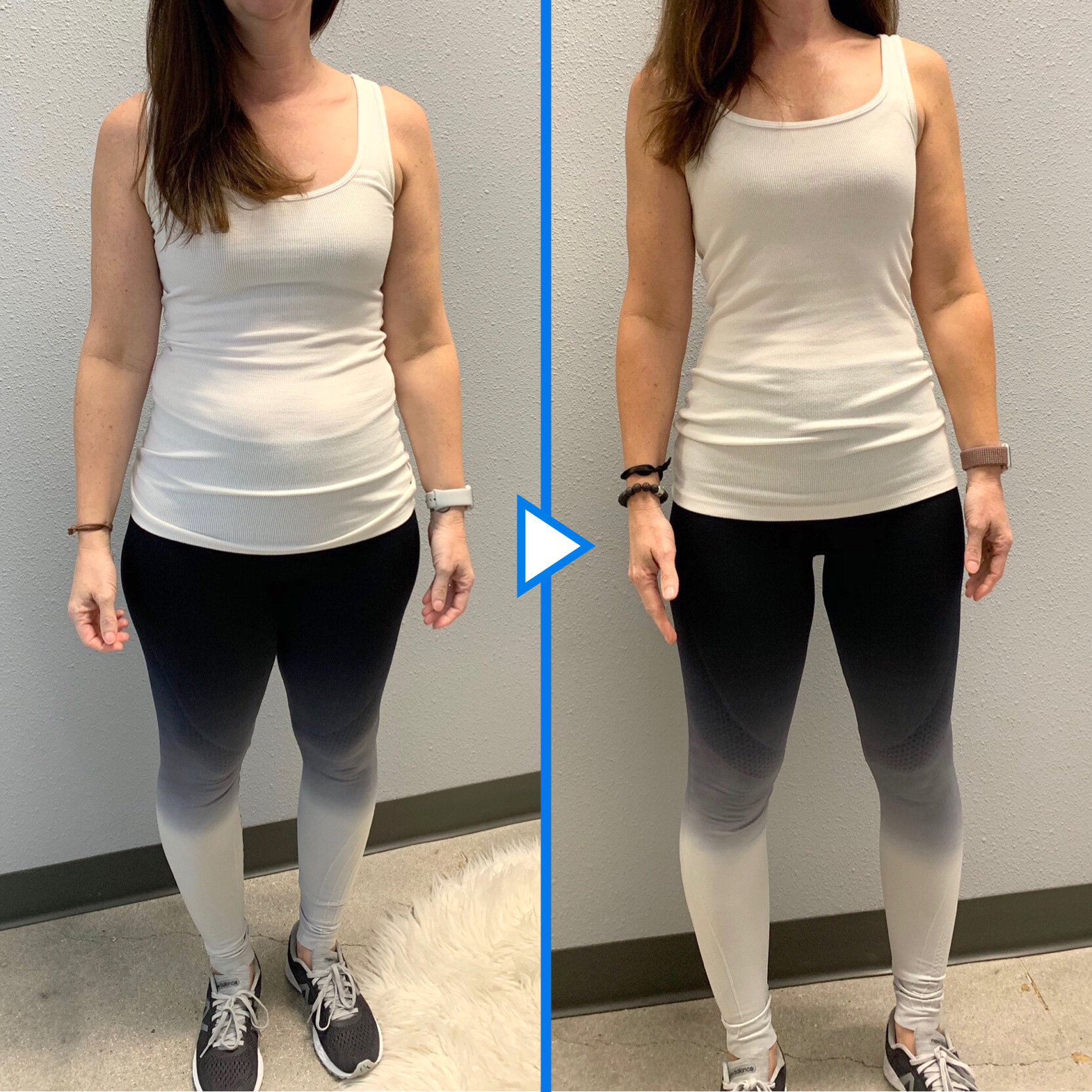 Frisco Nutrition Before & After